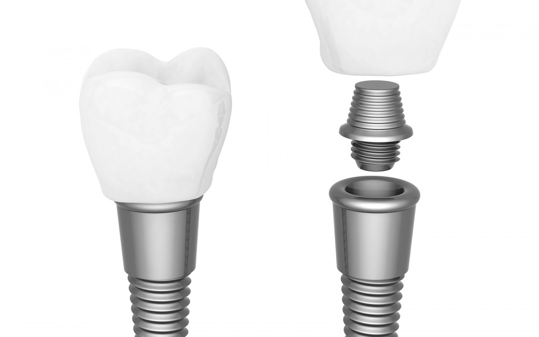 Implante dental: paso a paso